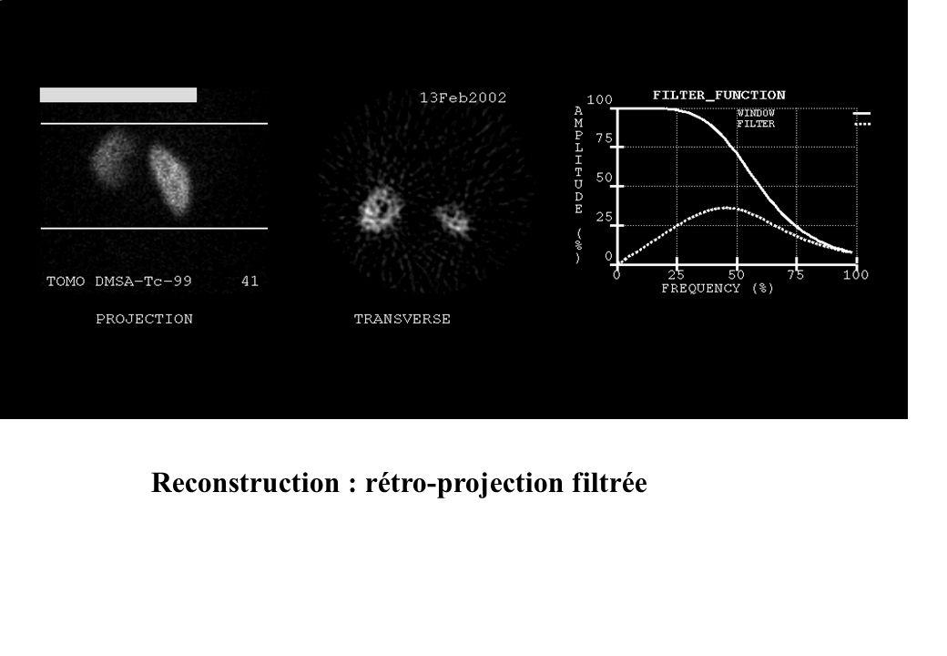 Reconstruction : rétro-projection filtrée