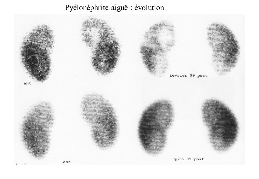 Pyélonéphrite aiguë : évolution
