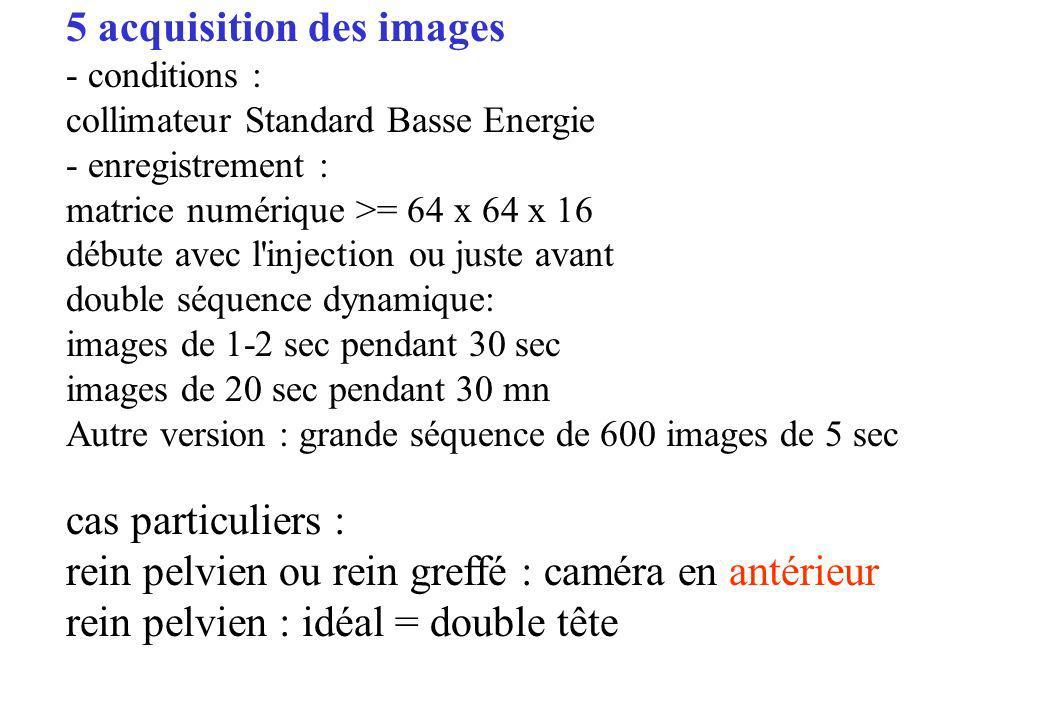 5 acquisition des images - conditions : collimateur Standard Basse Energie - enregistrement : matrice numérique >= 64 x 64 x 16 débute avec l'injectio
