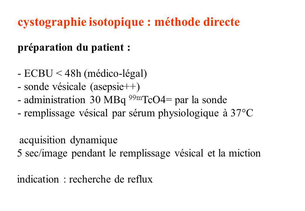cystographie isotopique : méthode directe préparation du patient : - ECBU < 48h (médico-légal) - sonde vésicale (asepsie++) - administration 30 MBq 99