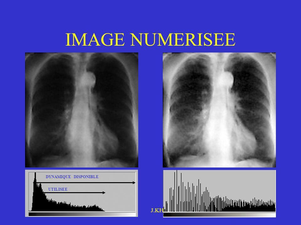 Novembre 2005IFMEM J.KHAIRALLAH IMAGE NUMERISEE DYNAMIQUE DISPONIBLE UTILISEE Étalement dhistogramme