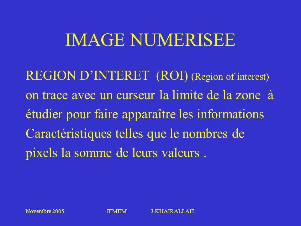 Novembre 2005IFMEM J.KHAIRALLAH IMAGE NUMERISEE REGION DINTERET (ROI) (Region of interest) on trace avec un curseur la limite de la zone à étudier pou