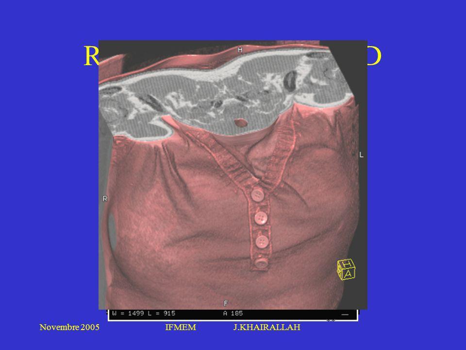 Novembre 2005IFMEM J.KHAIRALLAH RECONSTRUCTION 3D
