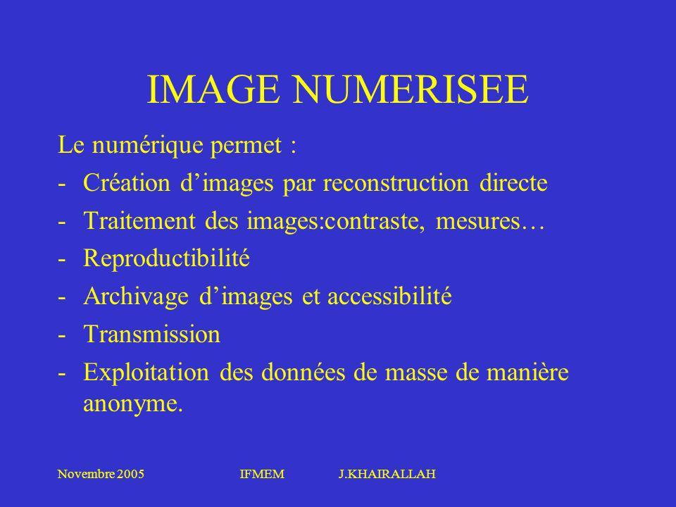 Novembre 2005IFMEM J.KHAIRALLAH IMAGE NUMERISEE Le numérique permet : -Création dimages par reconstruction directe -Traitement des images:contraste, m