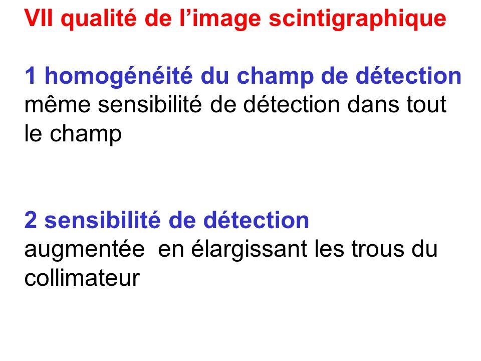 1 homogénéité du champ de détection 2 sensibilité de détection 3 résolution spatiale 4 résolution en énergie