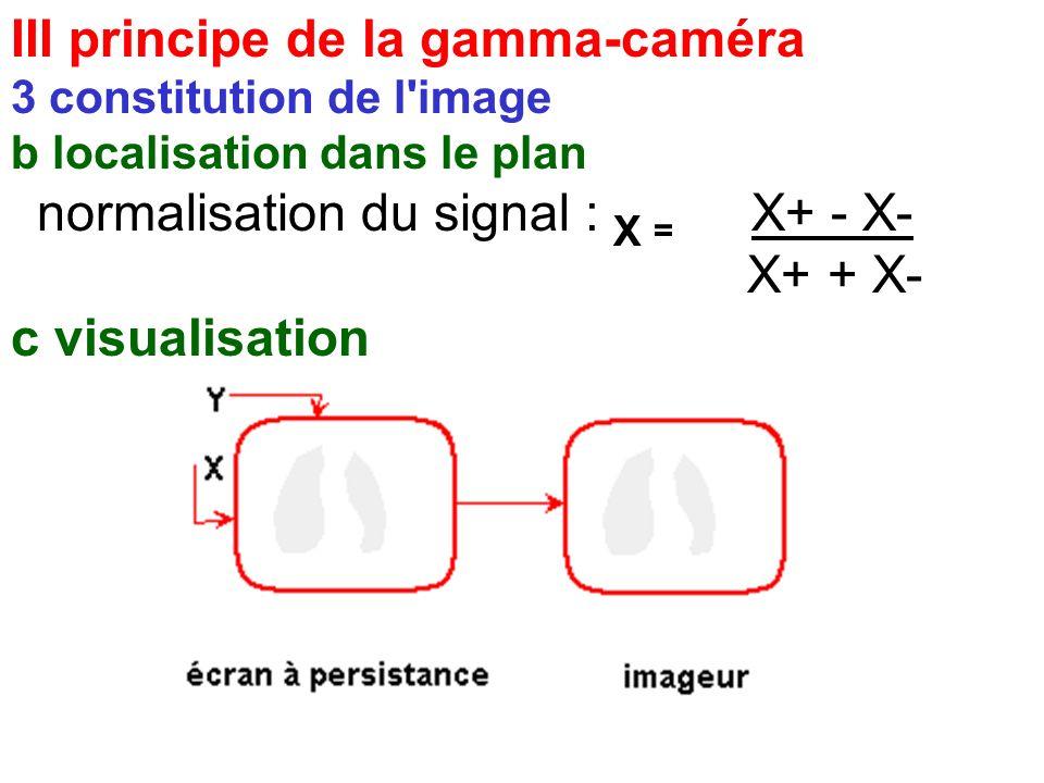 III principe de la gamma-caméra 3 constitution de l'image b localisation dans le plan normalisation du signal : X = X+ - X- X+ + X-