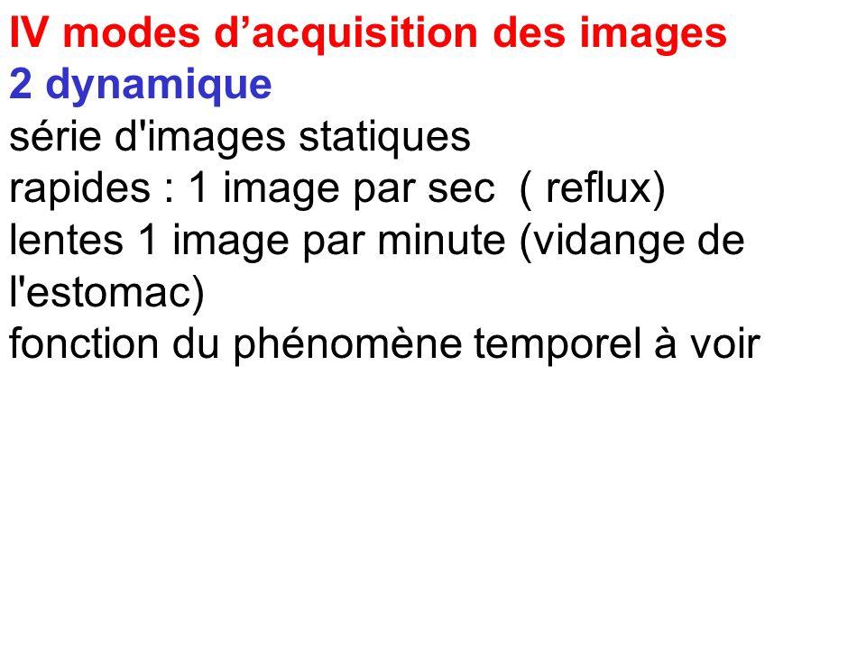 IV modes dacquisition des images 1 statique matrice image caractérisée par : - dimension ex : 256 * 256 - durée de l'acquisition ( cumul d'évènements)