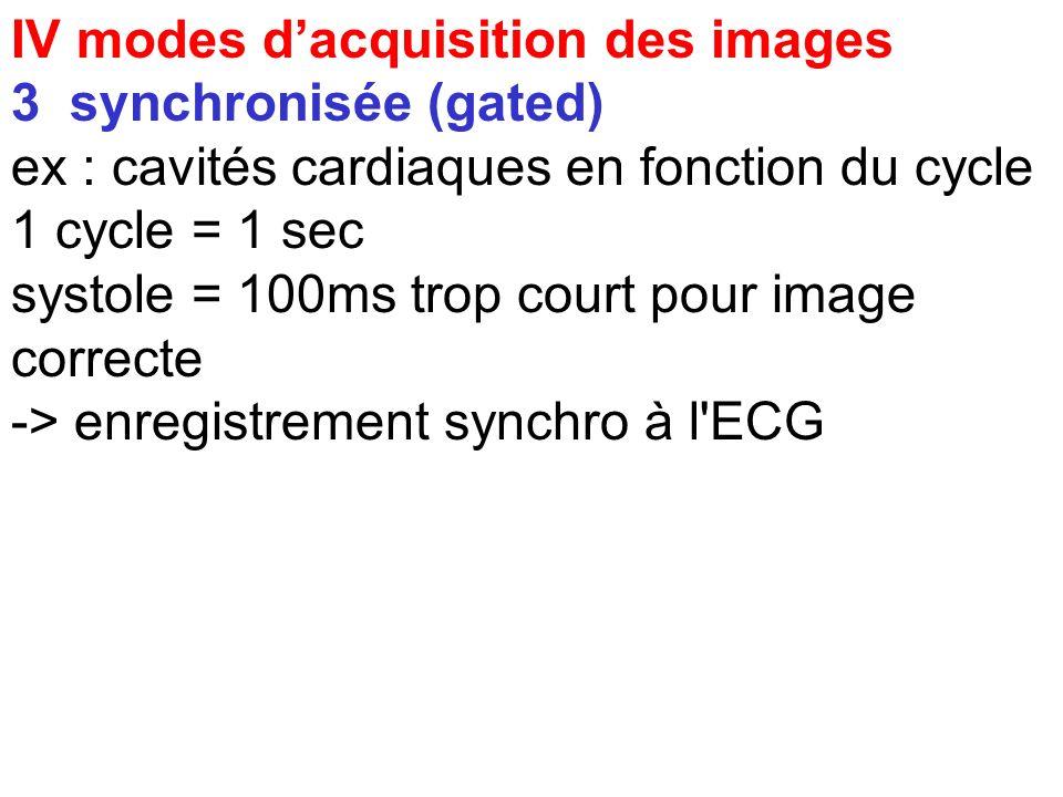 2 dynamique série d'images statiques rapides : 1 image par sec ( reflux) lentes 1 image par minute (vidange de l'estomac) fonction du phénomène tempor