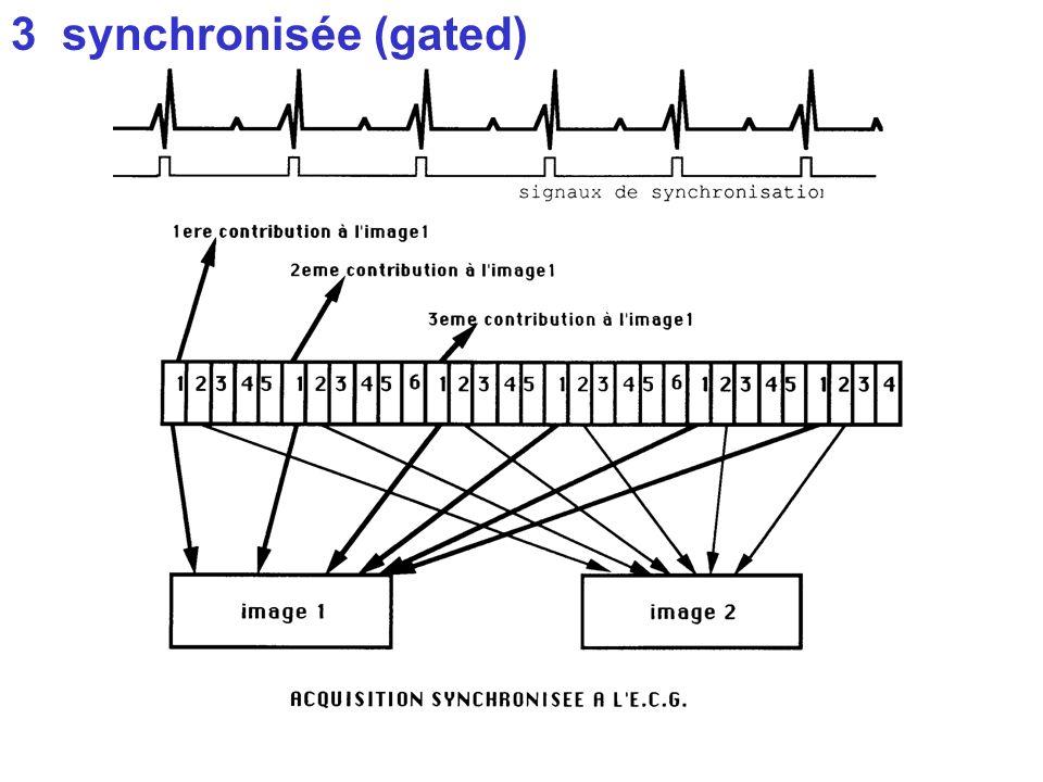 IV modes dacquisition des images 3 synchronisée (gated) ex : cavités cardiaques en fonction du cycle 1 cycle = 1 sec systole = 100ms trop court pour i