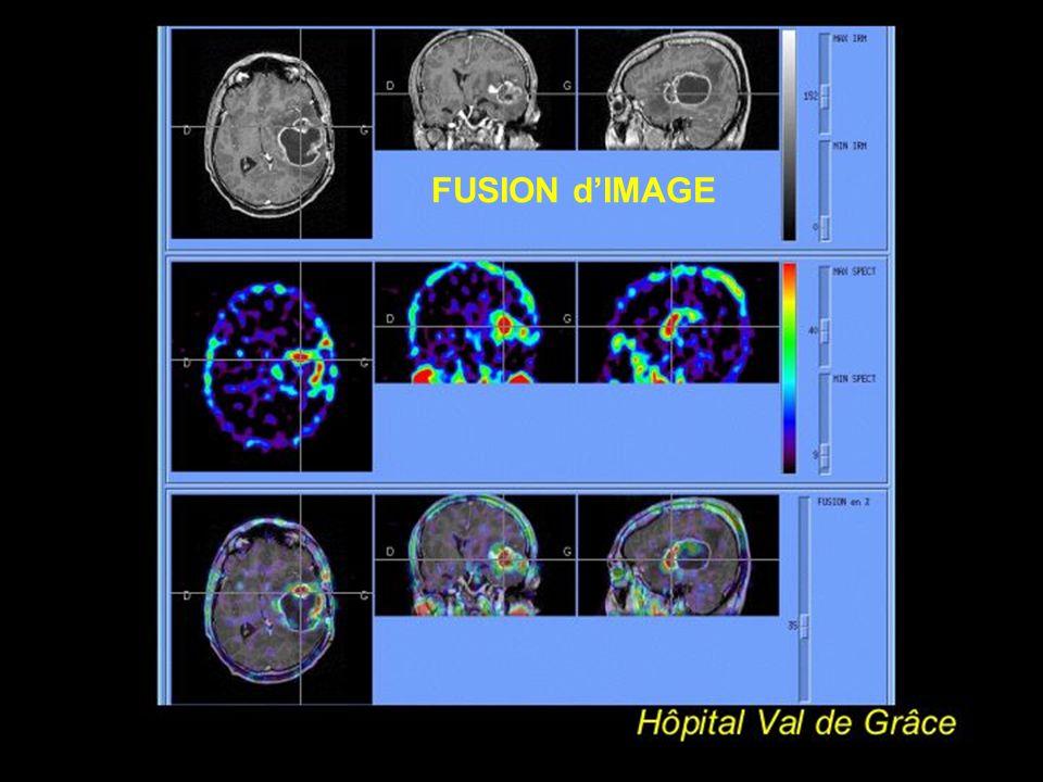 IV modes dacquisition des images 4 corps entier champ > caméra déplacement continu du détecteur devant le patient détecteur