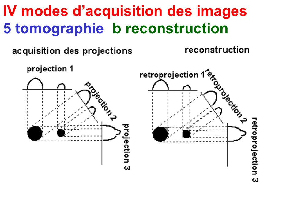 IV modes dacquisition des images 5 tomographie a acquisition