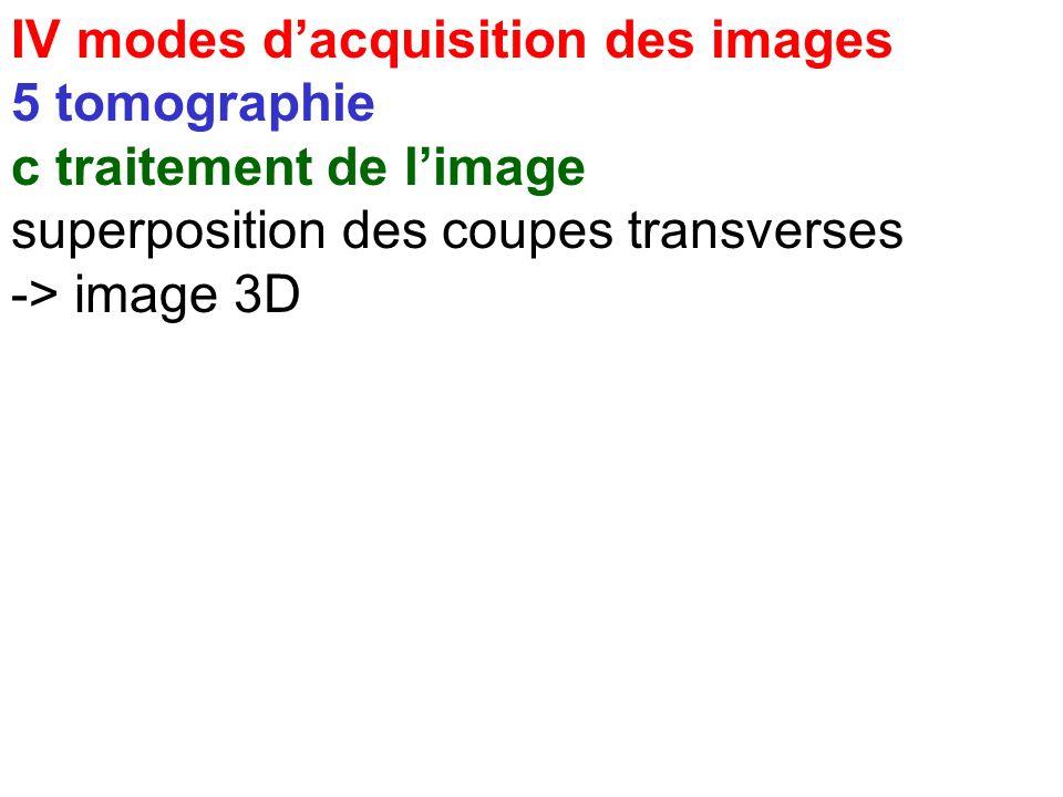IV modes dacquisition des images 5 tomographie b reconstruction - rétroprojection filtrée - reconstruction itérative rétroprojection itératif