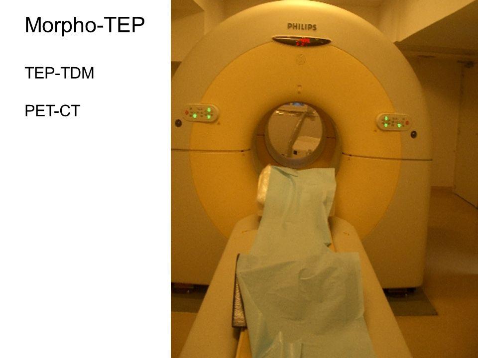 V caméra tep tendance des nouveaux TEP solution 2 : coupler un scanner X et un tep dans le même appareil autres intérêts -correction datténuation : ti