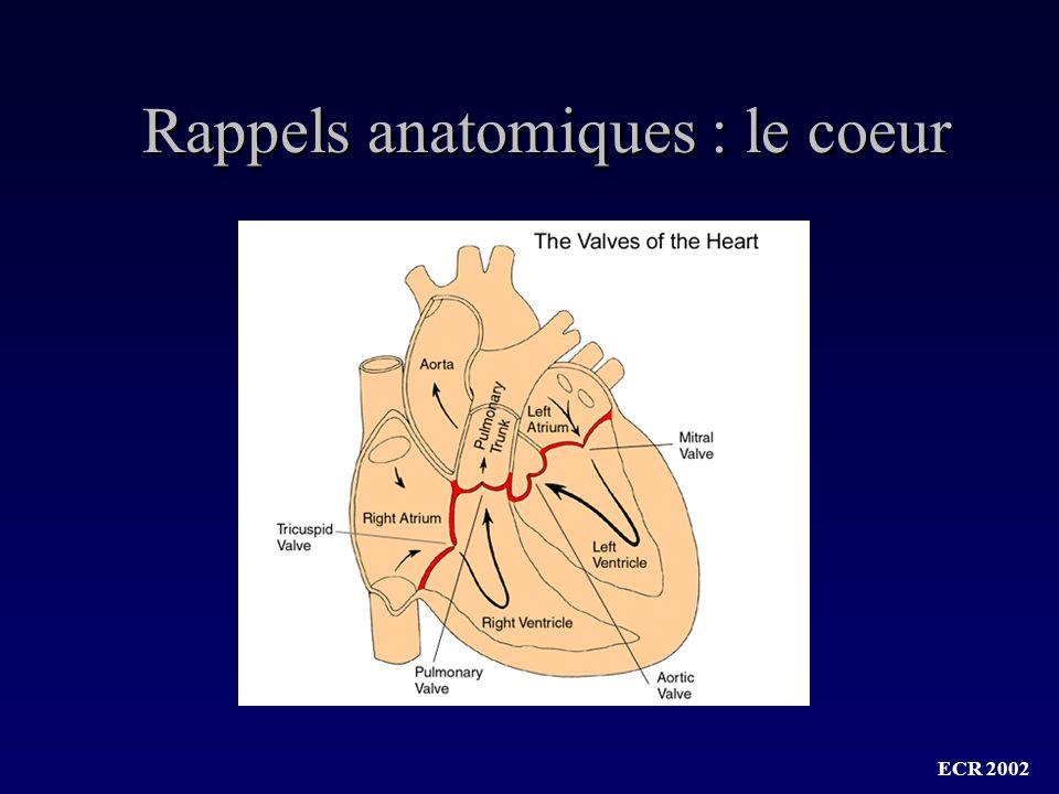 ECR 2002 Dissection aortique : Complications abdominales Déchirure de lintima avec clivage et creation de 2 chenaux Sténose aortique Extension artères viscérales Ischémie Evolution anévrysmale (14 à 30% - ATCD, controle HTA) Rupture (6%)