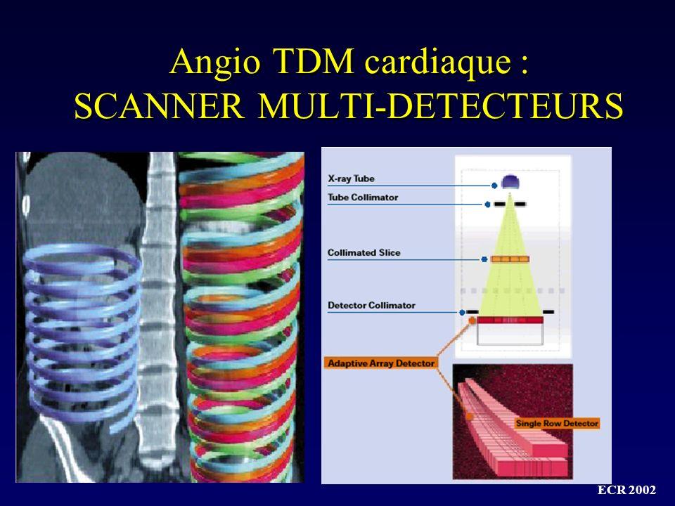 ECR 2002 MDCT : 4-16-32-40-64…