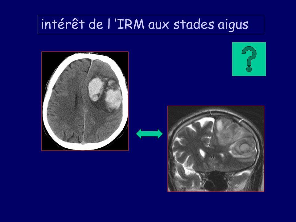 intérêt de l IRM aux stades aigus