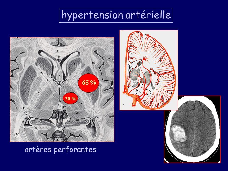 50 % des HIP spontanés Artères perforantes 65 % 20 % artères perforantes hypertension artérielle