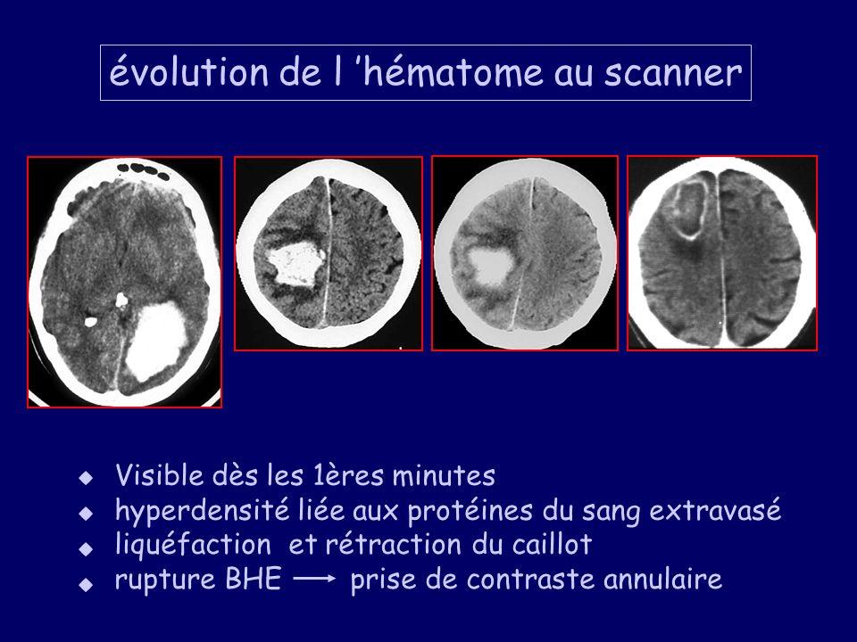 évolution de l hématome au scanner Visible dès les 1ères minutes hyperdensité liée aux protéines du sang extravasé liquéfaction et rétraction du caill