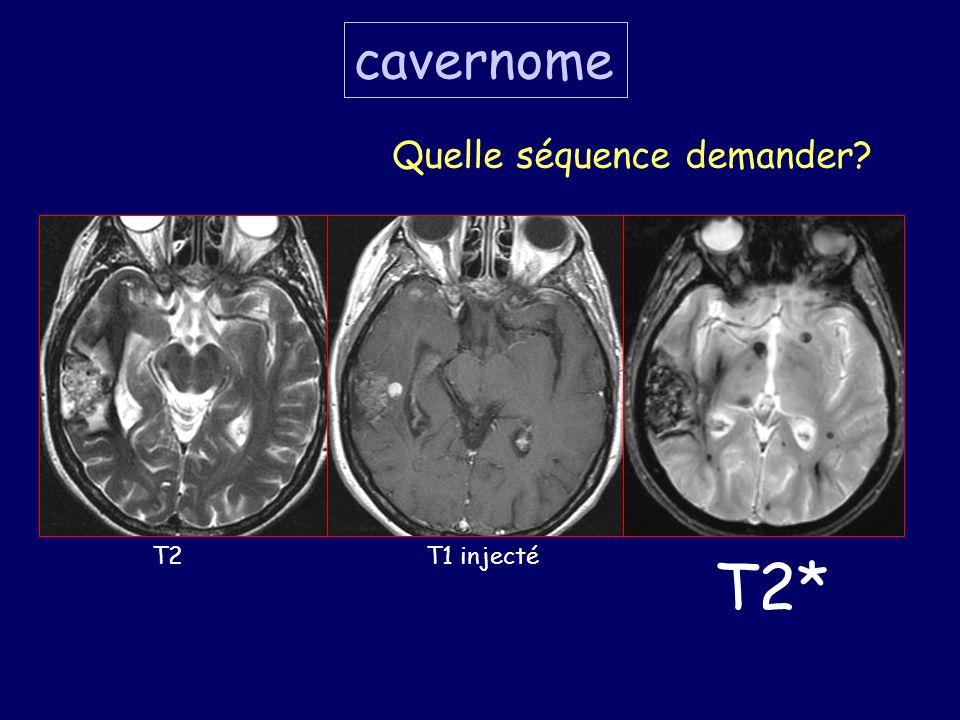 T2T1 injecté T2* cavernome Quelle séquence demander?