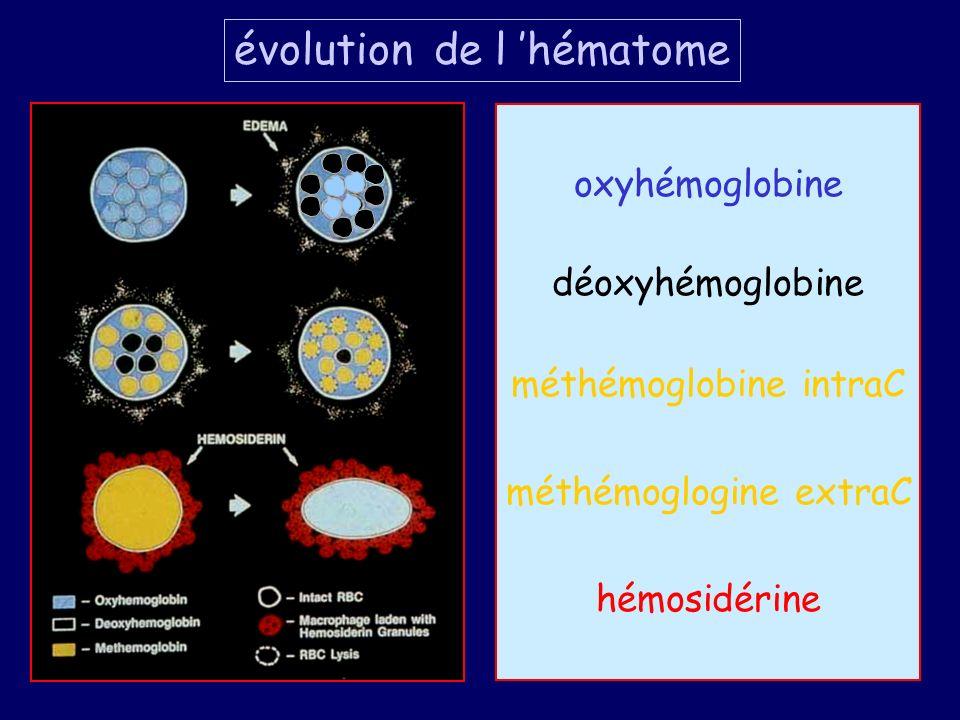oxyhémoglobine déoxyhémoglobine méthémoglobine intraC méthémoglogine extraC hémosidérine évolution de l hématome
