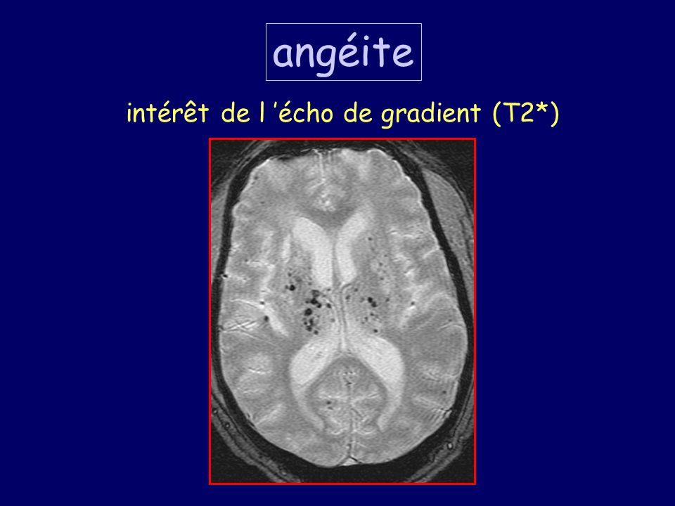 angéite intérêt de l écho de gradient (T2*)