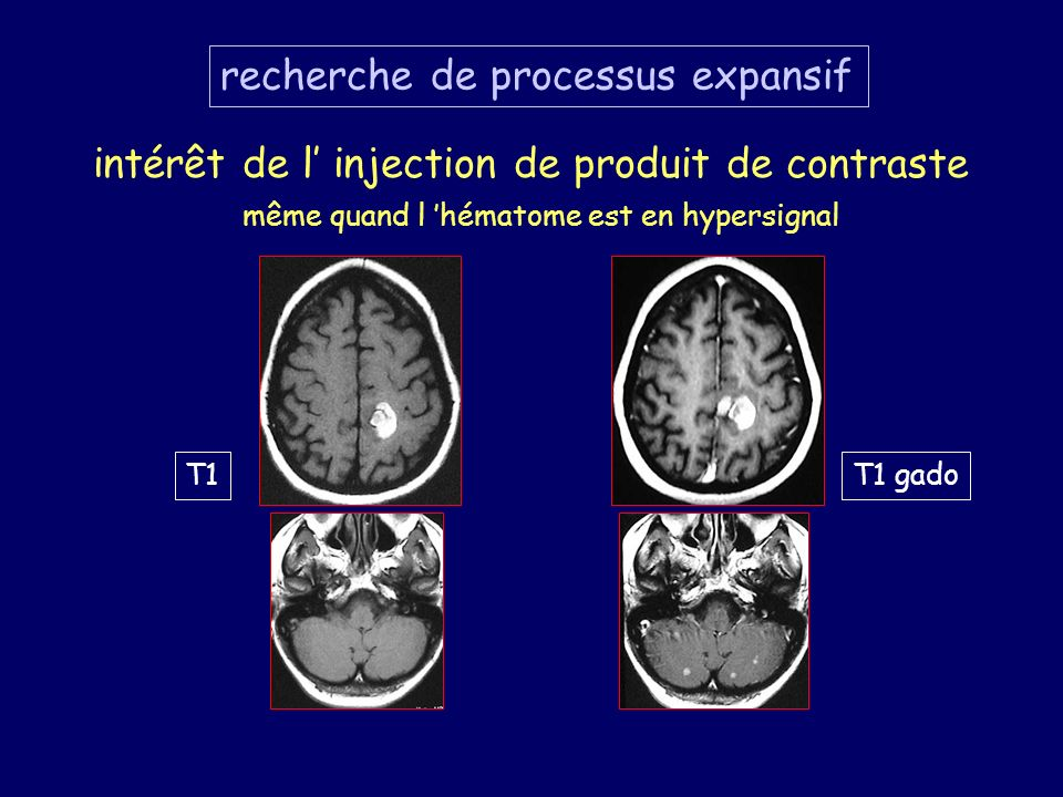 recherche de processus expansif intérêt de l injection de produit de contraste T1T1 gado même quand l hématome est en hypersignal