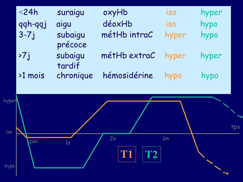 < 24h suraigu oxyHb iso hyper qqh-qqj aigu déoxHb iso hypo 3-7j subaigu métHb intraC hyper hypo précoce >7j subaigu métHb extraC hyper hyper tardif >1