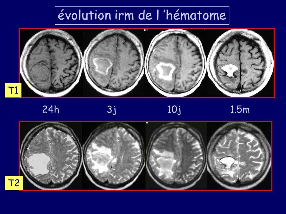24h3j10j1.5m T1 T2 évolution irm de l hématome