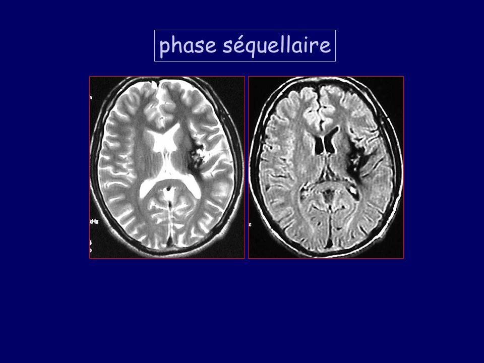Hémorragies cérébrales tumeurs infarctus hémorragiques hta coagulopathiesangiopathies malformations vasculaires