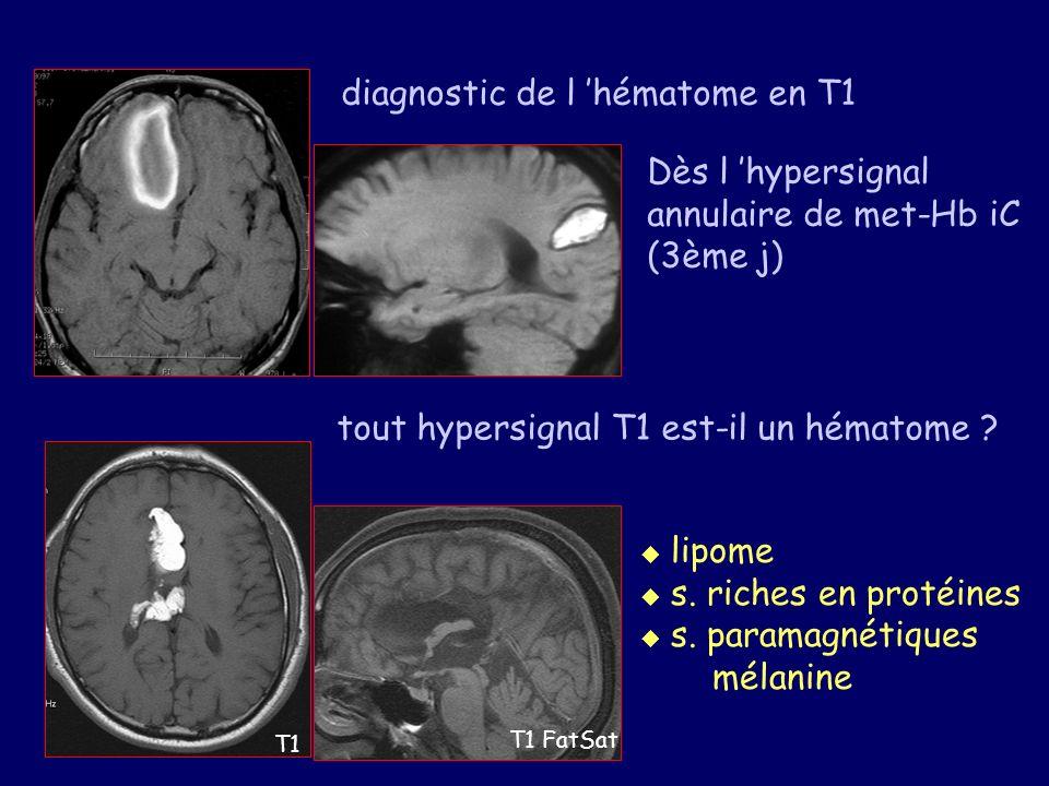 diagnostic de l hématome en T1 Dès l hypersignal annulaire de met-Hb iC (3ème j) tout hypersignal T1 est-il un hématome ? T1 T1 FatSat lipome s. riche