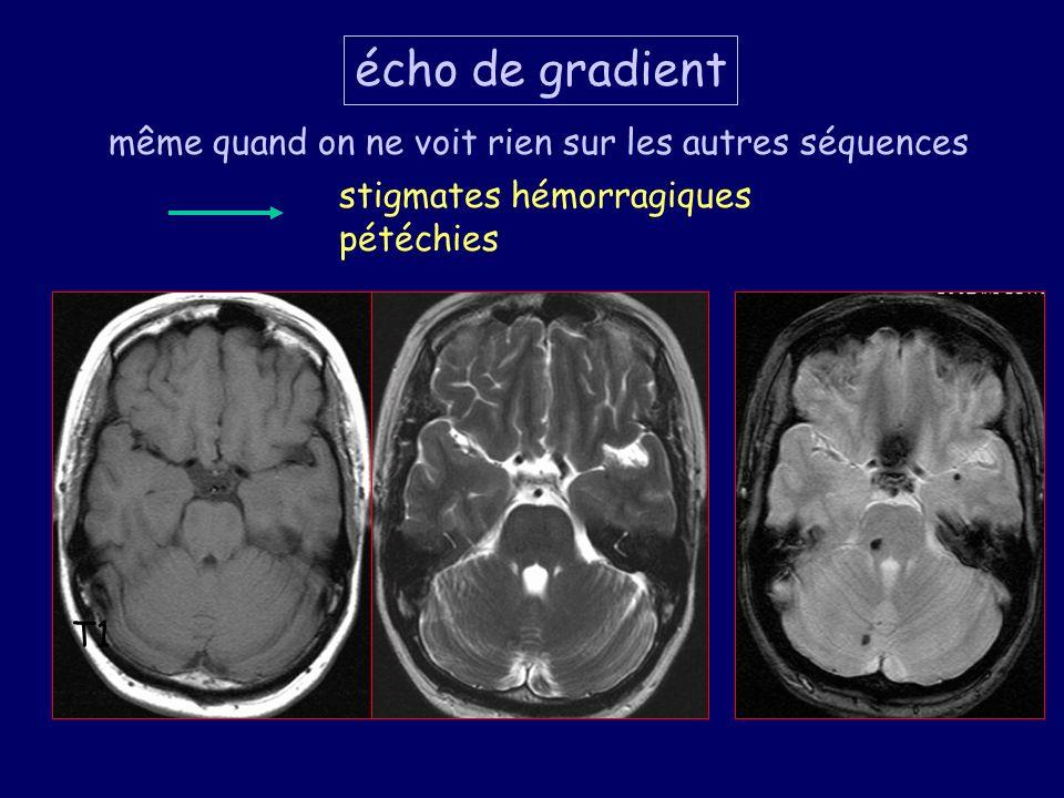 T1 même quand on ne voit rien sur les autres séquences écho de gradient stigmates hémorragiques pétéchies