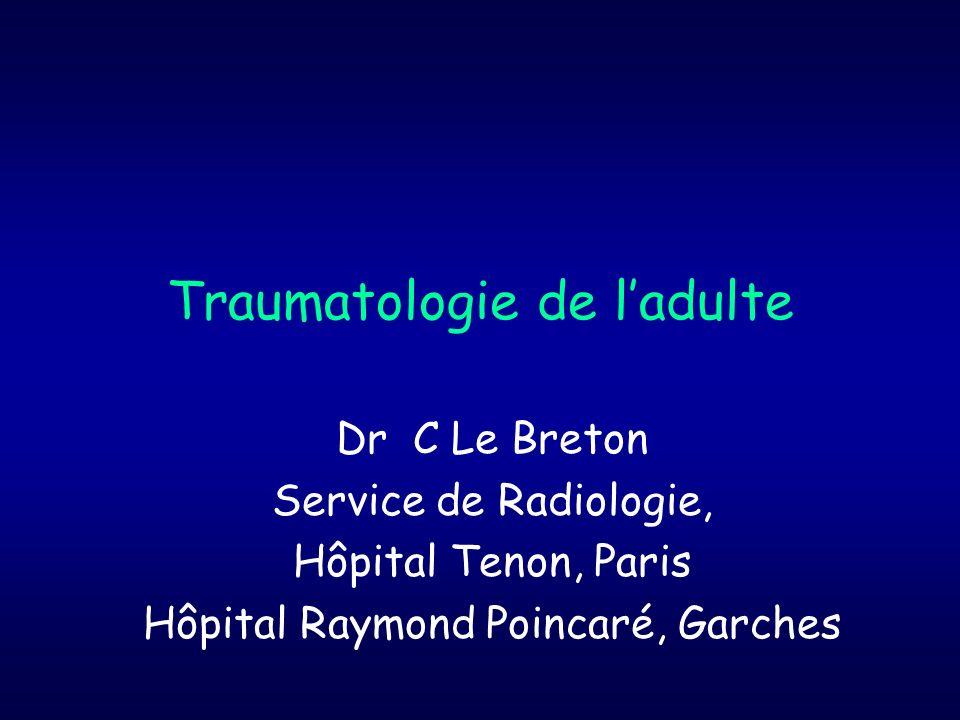 Sémiologie radiologique du trait de fracture (1) Fractures complètes Trait clair, séparant los en 2 ou plusieurs parties, plus ou moins déplacées Finement dentelé ou irrégulier Dépaisseur non uniforme Angle net avec le liseré cortical : décrochage des contours Œdème péri-osseux