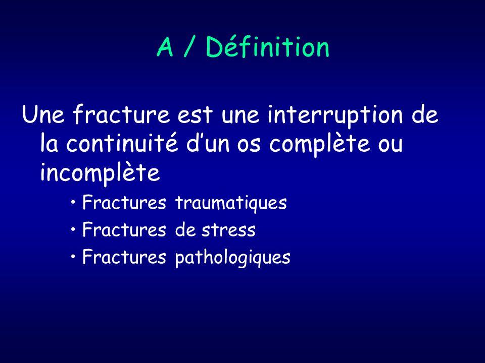 Fractures traumatiques Complètes Incomplètes (enfant)