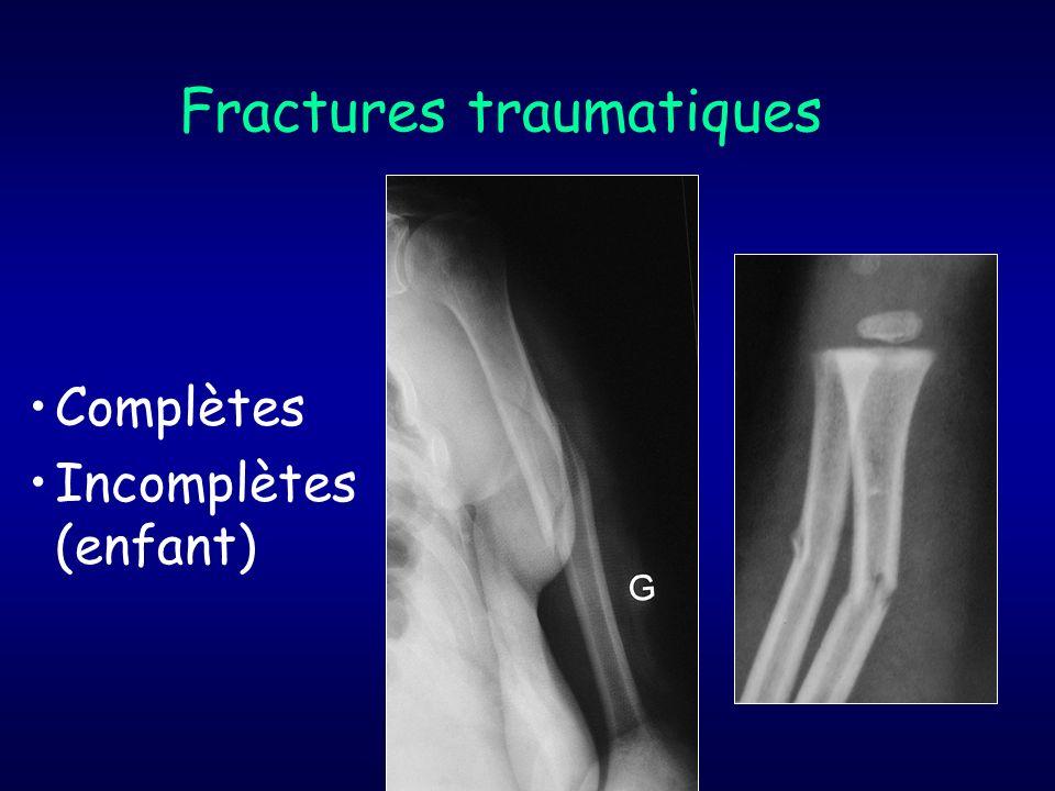 fractures complètes 1.Bi-fragmentaires simples a / Trait transversal b / Trait oblique Court Long c / Trait hélicoïdal spiroïde