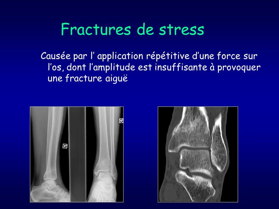 fractures complètes 2.Comminutives : a plus de 2 fragments 3.