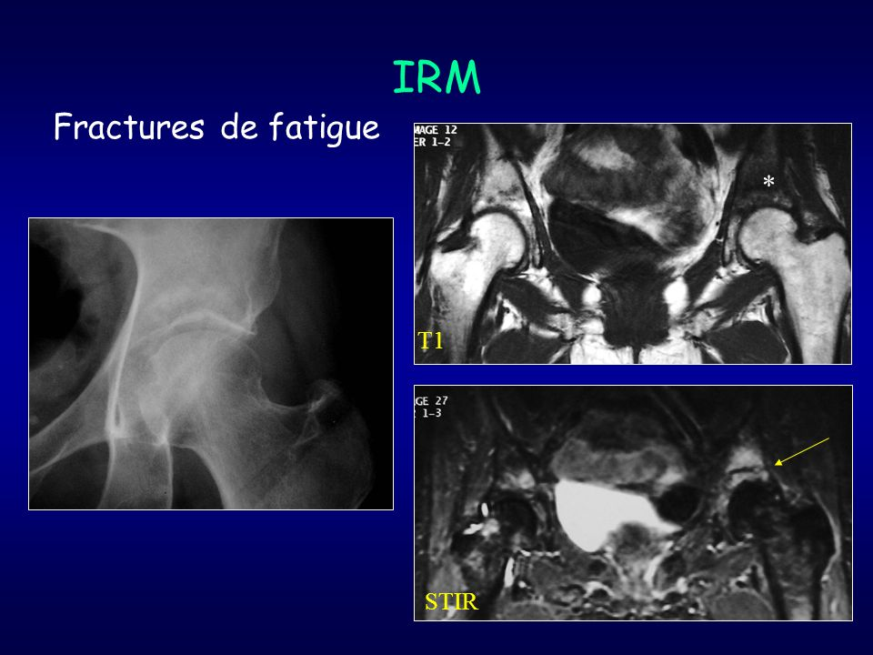 IRM Fractures de fatigue * T1 STIR