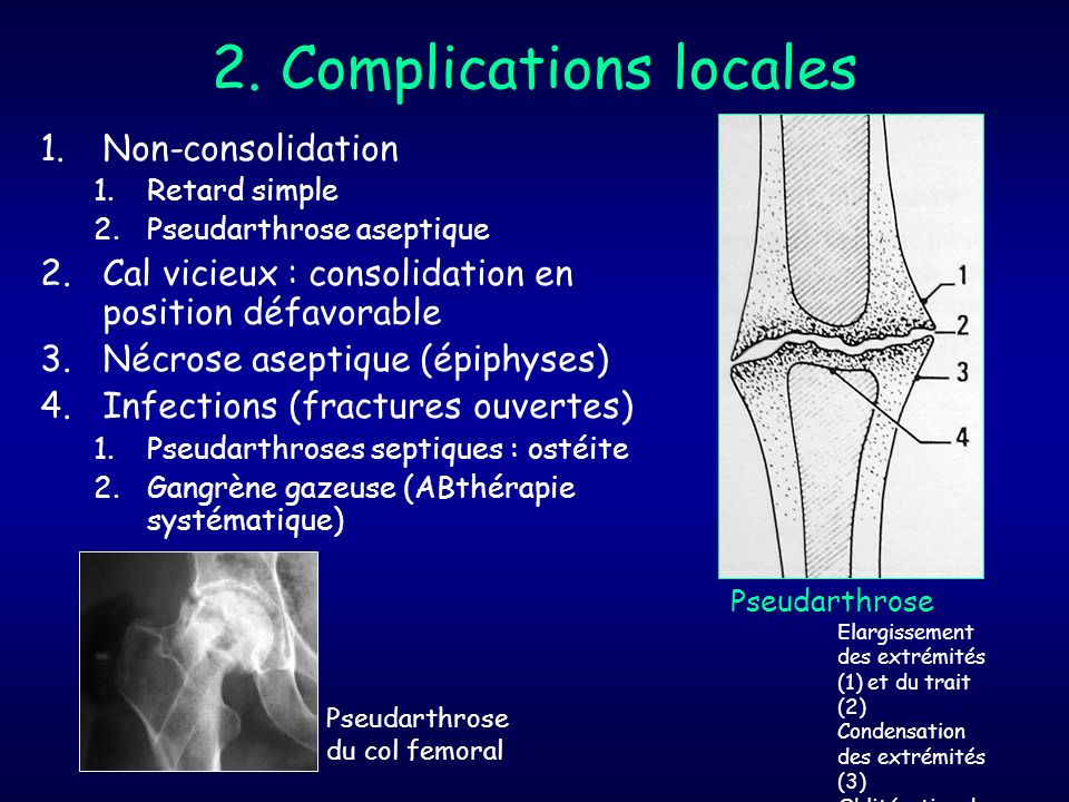 2. Complications locales 1.Non-consolidation 1.Retard simple 2.Pseudarthrose aseptique 2.Cal vicieux : consolidation en position défavorable 3.Nécrose
