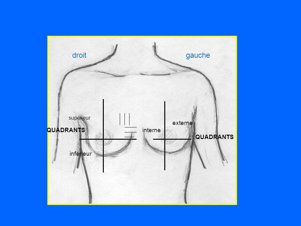 droitgauche QUADRANTS supérieur inférieur interne externe