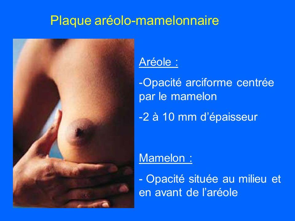 Plaque aréolo-mamelonnaire Aréole : -Opacité arciforme centrée par le mamelon -2 à 10 mm dépaisseur Mamelon : - Opacité située au milieu et en avant de laréole