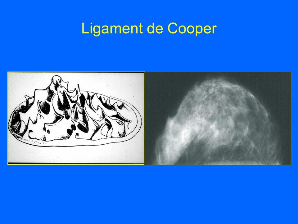 Ligament de Cooper
