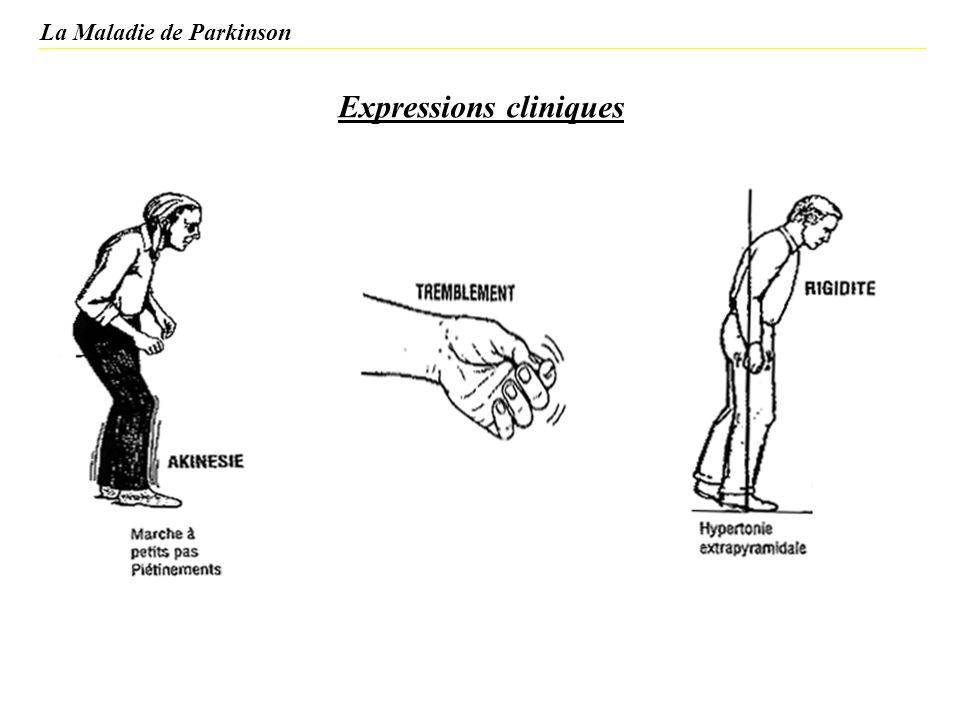Stratégies thérapeutiques actuelles de la maladie de Parkinson Patients dont la manifestation de la maladie apparaît vers la cinquantaine même schéma thérapeutique si insuffisant agonistes dopaminergiques + lévodopa - carbidopa