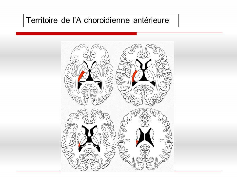 Territoire de lA choroidienne antérieure