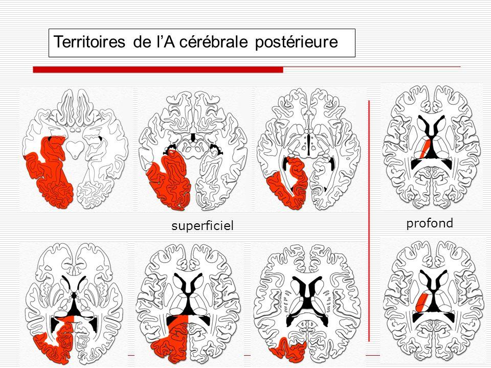 Territoires de lA cérébrale postérieure superficiel profond