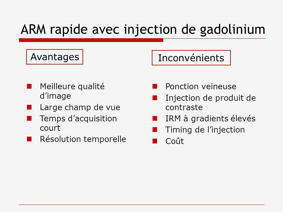 ARM rapide avec injection de gadolinium Meilleure qualité dimage Large champ de vue Temps dacquisition court Résolution temporelle Ponction veineuse I