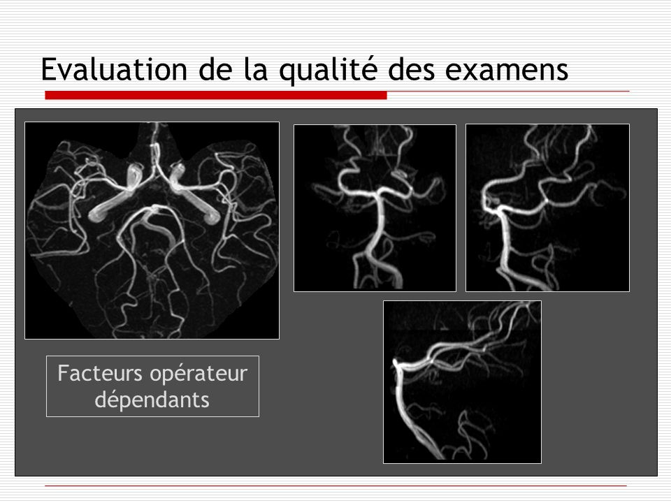 Evaluation de la qualité des examens Facteurs opérateur dépendants