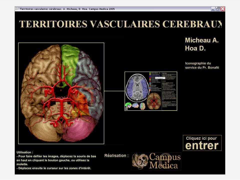 Territoires de lA cérébrale moyenne