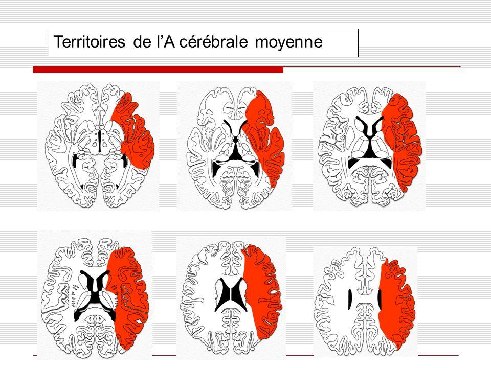 Territoire profond de lA cérébrale moyenne