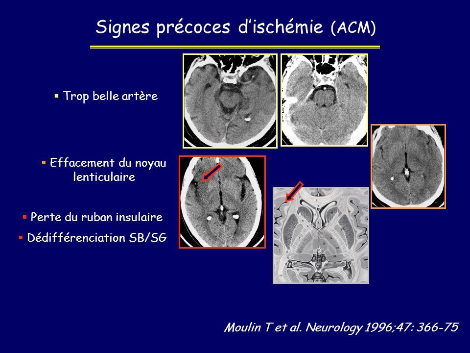 Moulin T et al. Neurology 1996;47: 366-75 Signes précoces dischémie (ACM) Trop belle artère Effacement du noyau lenticulaire Perte du ruban insulaire