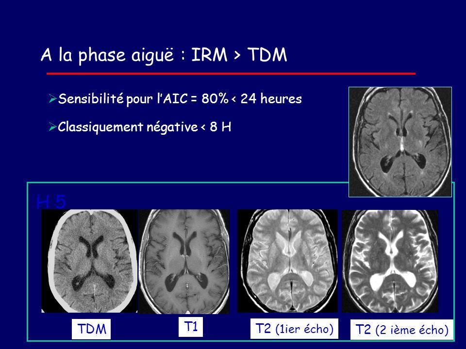 TDM T2 (1ier écho) T2 (2 ième écho) Sensibilité pour lAIC = 80% < 24 heures Classiquement négative < 8 H A la phase aiguë : IRM > TDM H 5 T1