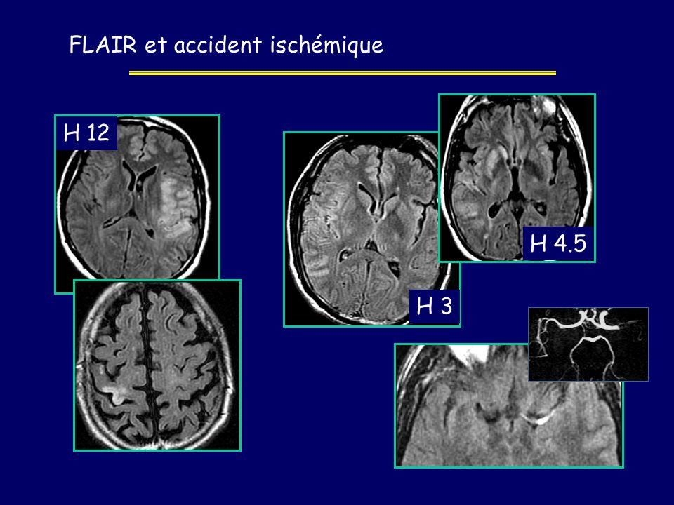 FLAIR et accident ischémique H 12 H 3 H 4.5